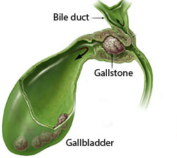 read about choledocholithiasis (gallstones in the common bile duct), Skeleton