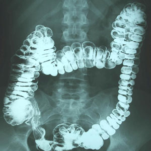 Ulcerative colitis x ray